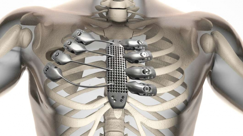 3D printing for medical industry, 3D printed sternum by Anatomics