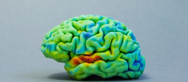 How to: 3D print your own brain using MRI or CT scans & free software