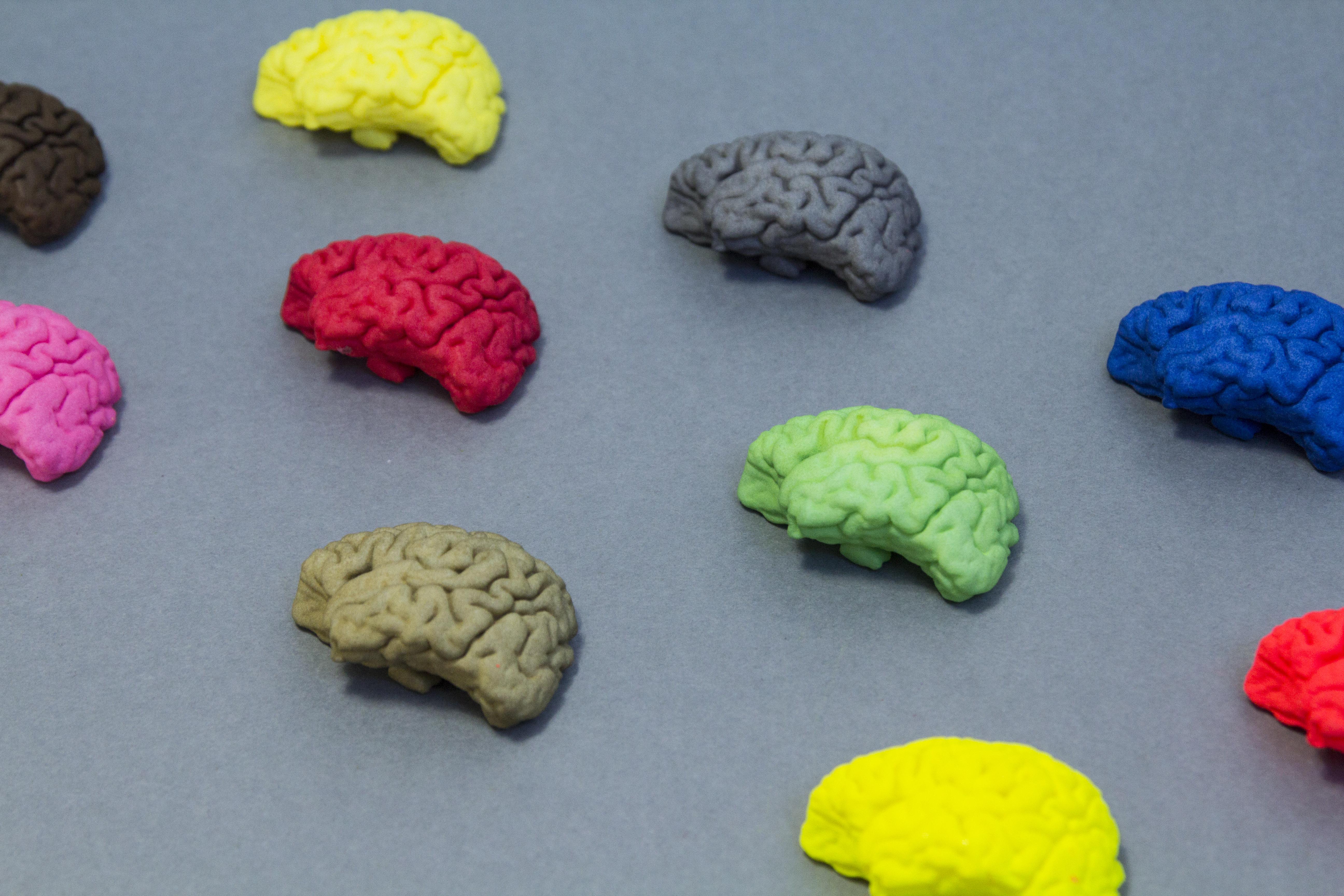 brain_plastic3