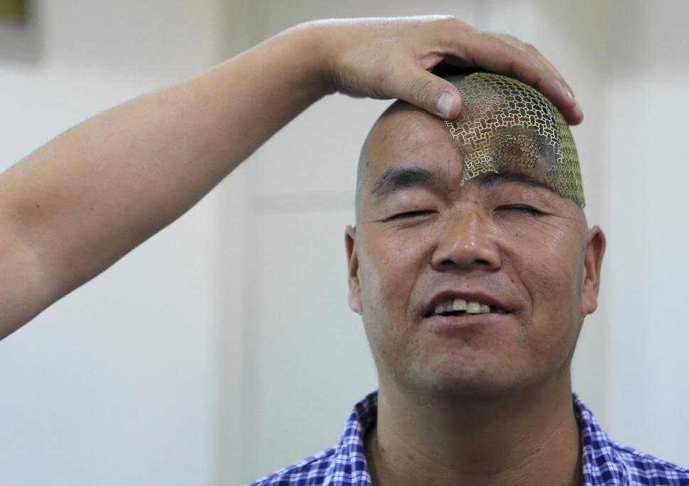 3d-printed-titanium-mesh-to-rebuild-half-of-a-man-skull