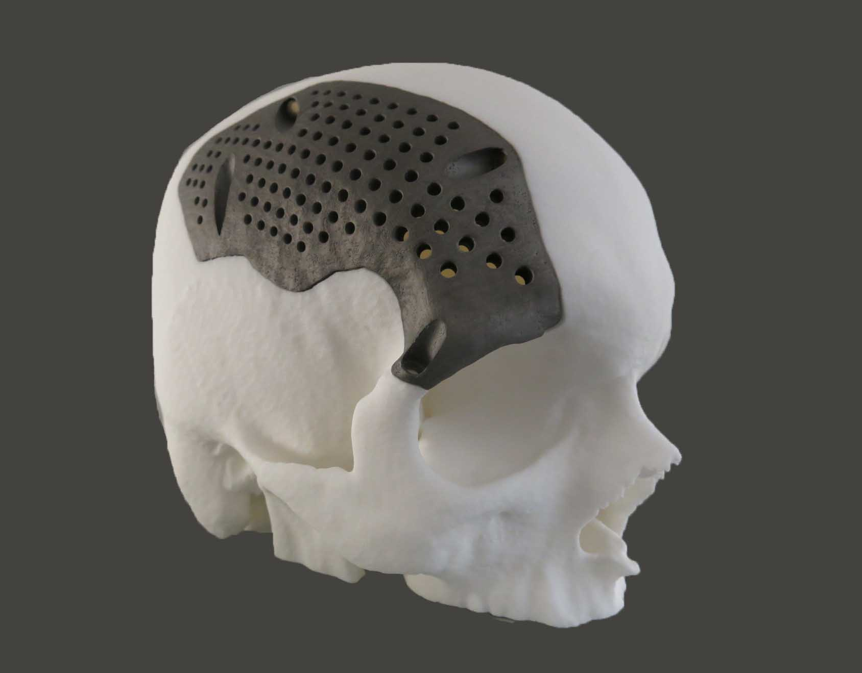 3D Printed titanium-medical-implants-sculpteo