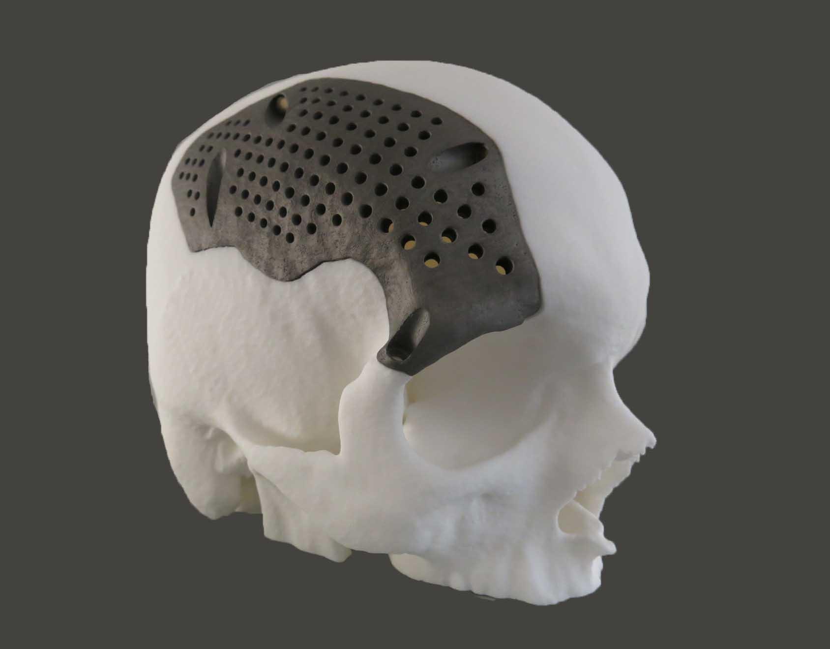 3D Printed titanium-medical-implants-sculpteo