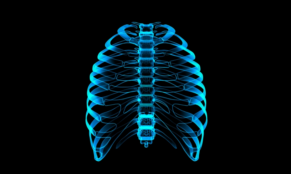 3D Printed Prosthetics: Reproducing a Rib Cage