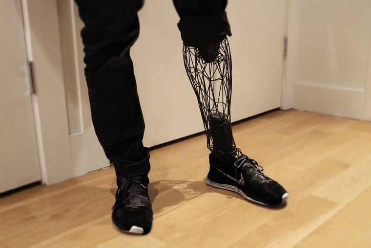 http://www.ufunk.net/en/tech/exo-prosthetic-leg/
