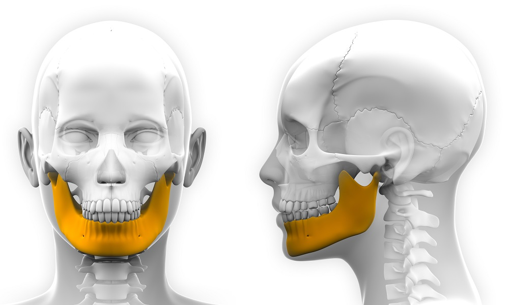 Medical 3D printing: Additive manufacturing for Jaw Reconstruction