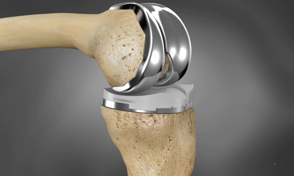 The 3D printed knee replacement