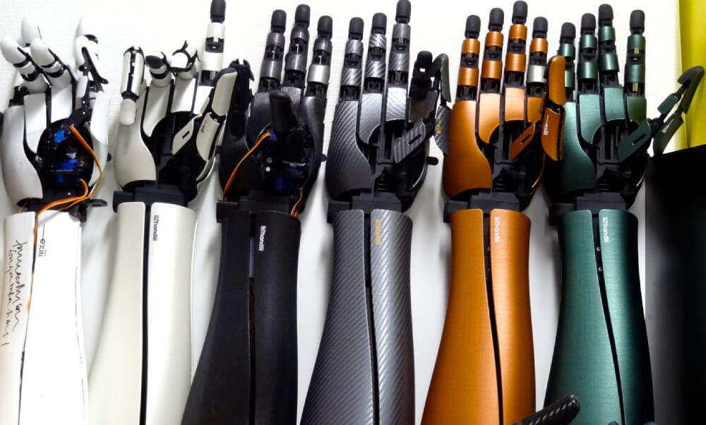 How 3D printed robotic arms could help you