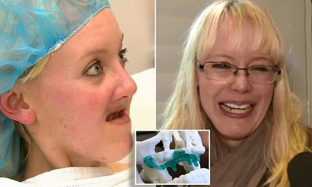 https://www.dailymail.co.uk/news/article-6453939/Woman-31-lost-jaw-teeth-cancer-fitted-3D-jaw-world-makeover.html