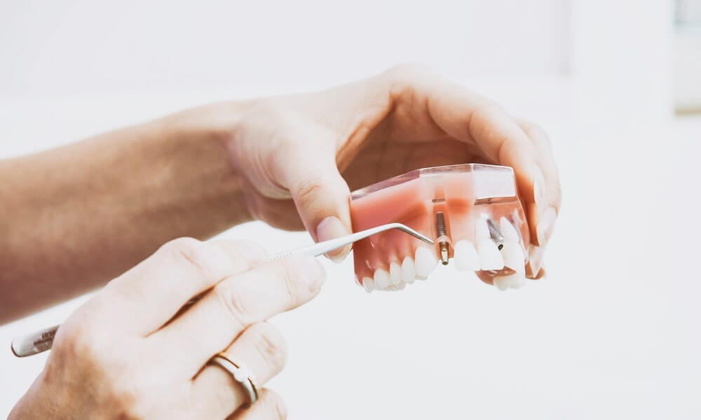 3D printing solving denture problem... in prison?