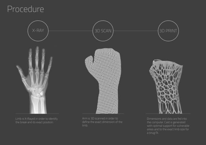 https://www.arch2o.com/new-way-heal-broken-bones-3d-printed-cast-3d-molds-exoskeletal/