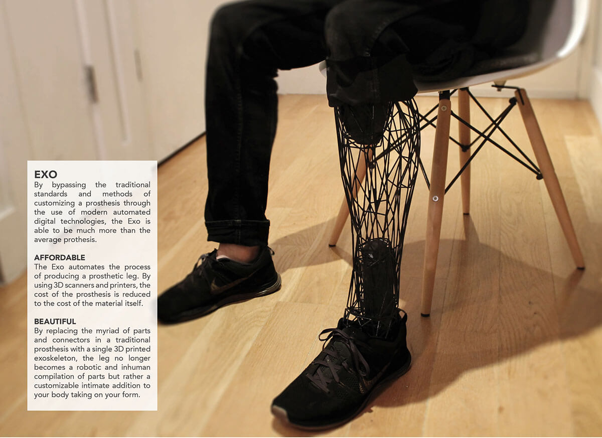 https://www.behance.net/gallery/20696469/Exo-Prosthetic-Leg
