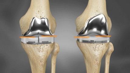 3D printed knee