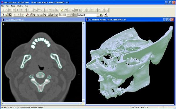 medical 3D model